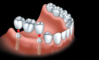 A fixed bridge is anchored to dental implants to replace all teeth